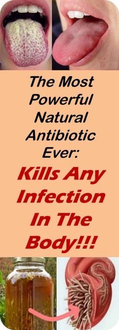 The Most Powerful Natural Antibiotic Ever: Kills Any Infection In The Body! - Healthy Daily Life