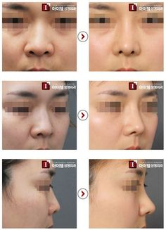 surgery Boulbous nose Korean plastic surgery plastic surgery cosmetic surgery nose surgery nose job rhinoplasty Boulbous nose correction involves narrowing the alar cart. Nose Plastic Surgery, Types Of Plastic Surgery, Korean Plastic Surgery, Plastic Surgery Procedures, Nose Surgery, Types Of Plastics, Things To Come, Skin Care, Plastic