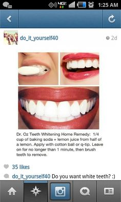 white teeth!