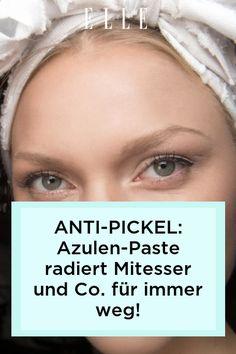 Entzündliche Pickel und Mitesser sind mehr als lästig. Dagegen wirkt zuverlässig Azulen-Paste und sorgt für ein reines Hautbild über Nacht.
