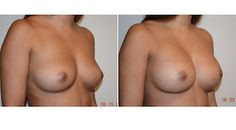 #BreastAugmentation by Dr. Walton Montegut of New Contours.  This patient wanted to maintain a natural look with an increased size.  She was just thrilled with the outcome following her surgery.  Check out http://www.newcontours.com/breast-procedures/breast-augmentation/ for more information or call (949) 706-2711 to schedule a complimentary consultation.    OC Health Magazine refers to Dr. Montegut as the #BestKeptSecretinOC.  His patients know why!