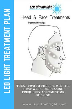 Treat two to three times the first week, decreasing frequency as symptoms subside. Treat with 10 to 100 joules directly over the problem facet. Treat with 5 to 25 joules per tender point if there is radiating pain down the arm, leg, or along intercostal nerves, if there is a radiating neuritis. $200 off any UltraBright! To get this special price and save $200 you must enter coupon code: GLOW  #lzrultrabright #therapy #anxiety #psychology #depression Led Light Therapy, Trigeminal Neuralgia, Face Treatment, How To Get, How To Plan, Neck Pain, Joules, Anxiety, Depression