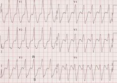 An important rhythm distinction between ventricular (VT) or supraventricular (SVT with aberrancy) this will influence your patient management Ekg Interpretation, Emergency Medicine, Critical Care, Medical, Education, Cardio, Nursing, Blog, Hearts