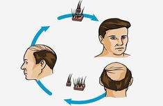 Deal diligently with hair loss problems! Opt for hair transplant in Dwarka Delhi, India. Know hair transplant cost in Delhi and also know hair transplant procedure at Delhi Laser Clinic Dwarka, Delhi. Hair Transplant Results, Hair Transplant Cost, Skin And Hair Clinic, Skin Clinic, Stop Hair Loss, Prevent Hair Loss, What Causes Hair Loss, Hair Loss Reasons, Supplements For Hair Loss