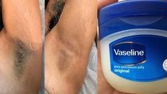 Remove unwanted hair in 2 minutes with vaseline