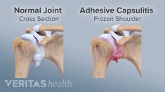 Frozen shoulder occurs when joint inflammation causes the shoulder ligaments to swell and thicken, resulting in scar tissue that leaves less space for the ball of the shoulder joint to rotate in its socket. Frozen Shoulder Causes, Frozen Shoulder Exercises, Frozen Shoulder Treatment, Shoulder Workout, Shoulder Stretches, Shoulder Rehab, Shoulder Problem, Shoulder Surgery, Shoulder Flexibility