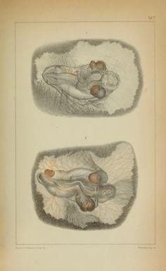 Untersuchungen über die Entstehung der Missbildungen zunächst in den Eiern der Vögel / - Biodiversity Heritage Library
