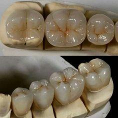 Sweltering Dental Crowns Before And After Porcelain Dental Jobs, Dental Art, Dental Procedures, Dental Life, Smile Dental, Dental Teeth, Dental Wallpaper, Dental Videos, Al Dente