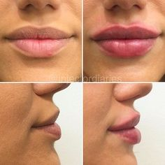 Happy plump day!  A before and immediately after of one of my gorgeous clients. These lips were achieved with 1ml of dermal filler. #injectordiaries