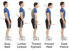 Posture chart for various lumbar and cervical deviations.