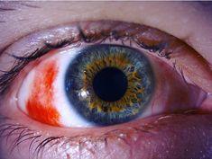 ¡Que foto! Vean cómo se presenta una hemorragia subconjuntival causada por la ruptura de pequeños vasos. Literalmente con sangre en el ojo.…