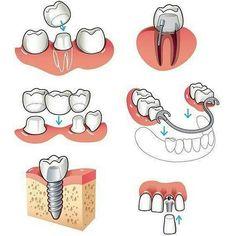 Reabilitação. PPR prótese sobre implantes coroas totais Ponte fixa etc. Devemos conversar e explicar detalhes aos pacientes sobre as opções prós e contras.  #bomdia  @Regranned from @dentistry.world -  Options for replacing missing teeth. .  by: @gazz.s . . . . .  FOLLOW @dentistryscience  _____________________________________ Facebook: Dentistry World https://www.facebook.com/dentistry.world12…