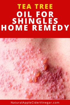 This tea tree oil for shingles remedy helps you relieve your shingles. This article contains a natural remedy to help you relieve your shingles. Use tea tree oil to help you relieve your shingles. Check out this great recipe to naturally get rid of shingles without using harmful ingredients that are bad for you. #teatreeoil #shinglesremedy #natrualcare #homeremedy Essential Oil Mixtures, Tea Tree Essential Oil, Tea Tree Benefits, Shingles Remedies, Essential Oils For Shingles, Red Rash, Hot Compress, Massage Lotion