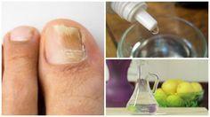 Fabrica tu propio rompe hongos natural para las uñas