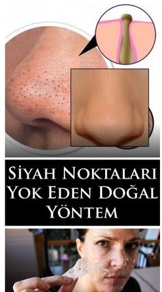 All of us desire to have clear skin, but those little parasites named blackheads occur between our wishes. Blackheads are Beauty Care, Beauty Hacks, Beauty Tips, Skin Tag Removal, Gewichtsverlust Motivation, Get Rid Of Blackheads, Braids For Black Hair, Homemade Skin Care, Super Natural