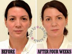 Give Yourself A Face Makeover And Look YEARS YOUNGER In Just 4 Weeks For Almost No Money! #tipit #Beauty #Trusper #Tip