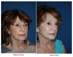 Facial Plastic Surgery : A Minituck by Charlotte's Best Facial Plastic Surgeon can refresh your look   Read More: http://onlyfaces.com/blog/minituck-posts/a-minituck-by-charlottes-best-facial-plastic-surgeon-can-refresh-your-look/  #FacialPlasticSurgeron #DrFreeman #OnlyFaces