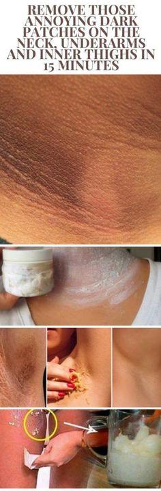 Get Rid of Underarm Dark Skin, Age Spots, Freckles & Whiten Skin in 7 Days Dark Spots Under Armpits, Dark Spots On Legs, Beauty Care, Beauty Hacks, Beauty Ideas, Beauty Secrets, Belleza Diy, Inner Thigh, Health And Beauty Tips