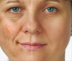 Post Inflammatory Hyperpigmentation Natural Treatment Post Inflammatory Hyperpigmentation occurs when skin infections, blisters, sun burns, tan and other b Acne Causes, Home Remedies For Acne, Too Faced, Sagging Skin, Uneven Skin, Smooth Skin, Natural Treatments, Beauty Secrets, Skin Treatments