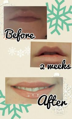 My very own results from NuSkin lip contouring gloss!
