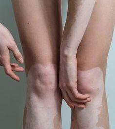 Vitiligine: 4 rimedi naturali per combatterne i sintomi