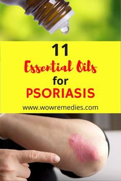 Are you looking for the best essential oils for psoriasis? Here are the top 11 essential oils that can soothe your psoriasis symptoms. Essential Oils For Psoriasis, Essential Oils For Skin, Essential Oil Uses, Young Living Essential Oils, Psoriasis Symptoms, Psoriasis Diet, Psoriasis Remedies, Homeopathic Remedies, Health Remedies