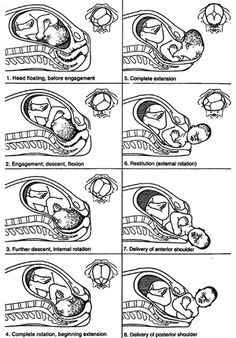Cardinal Movements - Baby makes 7 distinct moves while coming down ...