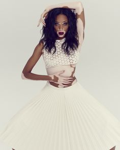 Chantelle Winnie: vitiligo model - love the skin you're in