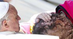 Papa bendice a enfermo con tumores en la piel, Mundo - Edición Impresa Semana.com - Últimas Noticias