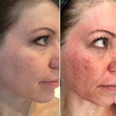 Age areas, wrinkles and great lines virtually vanish. This process is likewise helpful for those who want to treat specific skin imperfections and acne problems.