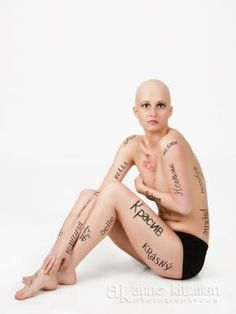 Just a little of me :) #alopecia    I would love to be this BOLD!! : )