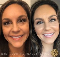 "Southern Aesthetics Beauty on Instagram: ""FILLER MAGIC⁠✨ ⁠⠀ Imagine being able to wake up and skip the concealer and enjoy a refreshed face all year round... oh wait, you can - the…"""