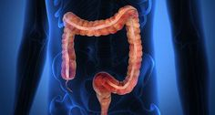 Watch This Video Daunting Home Remedies for Natural Colon Cleansing Ideas. Inconceivable Home Remedies for Natural Colon Cleansing Ideas. Colon Cleanse Powder, Colon Cleanse Diet, Colon Detox, Natural Colon Cleanse, Cleanse Detox, Bowel Cleanse, Colon Health, Clean Colon Home Remedies, Colon Flush
