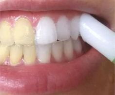 Dental tartar is one of the most common oral problems of today. It is the main cause for periodontitis and other oral problems as well. Dental tartar are mineral deposits on the teeth which accumul… Doterra, Health Remedies, Home Remedies, Natural Remedies, Beauty Secrets, Beauty Hacks, Beauty Products, Do It Yourself Nails, Just In Case