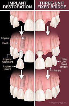 Para resolver una ausencia de diente, se puede solucionar con un implante o con un puente (prótesis fija)