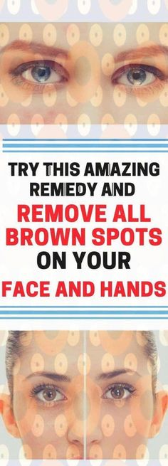 Tips on how to Take away Brown Spots on Confront The natural way #BrownSpotsOnSkin
