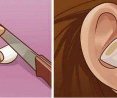 Iata ce se intampla daca iti pui un catel de usturoi in ureche!