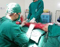 Cứu bệnh nhân nát chân trái vì bị máy cuốn   Sáng 7-10 TS-BS Nguyễn Văn Châu Tổng Giám đốc BV Đa khoa Xuyên Á cung cấp thông tin trên choPháp Luật TP.HCM.  Trưa 6-10 anh G. được người nhà đưa đến BV Đa khoa Xuyên Á trong tình trạng sốc chấn thương nặng lơ mơ vì mất nhiều máu ngất lịm do cơn đau quằn quại.  Chân trái nạn nhân bị trật biến dạng cong queo chảy nhiều máu. Dọc bàn chân đến đùi có khoảng 1/2 diện tích thịt bị dập nát và mất da. Người nhà cho biết trong lúc đang vận hành máy làm…