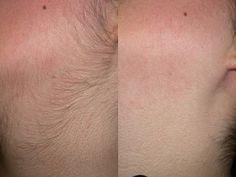 Si la raison des poils sur votre visage est l'hirsutisme, testez l'une de ces deux recettes simples, naturelles et efficaces pour se débarrasser de la pilosité faciale naturellement.