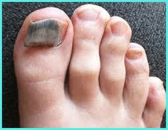 Grab detailed information about black toenail fungus. Use prescription-strength home remedies to get rid of black toenail fungus. Aztec Nails, Chevron Nails, Black Toenail Fungus, Fungus Toenails, Lush Products, Beauty Products, Makeup Products, Black Toe Nails, Amigurumi