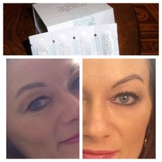 Get your Instantly Ageless now!). Better and safer then Botox)). This stuff works and it's fabulous!!  Get yours here:  http://www.angelsyouth.jeunesseglobal.com/
