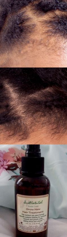 I put my hair and scalp through so much stress by wearing extension, braids and relaxers. I did everything to my hair trying to have the best look that I could but I did not realize the damage that I was causing. My hair started breaking off and the fall was so much that I had bald spots. When I looked in the mirror I would cry out of desperation. I started using this hair treatment and I saw how my hair started to grow by filling in the bald spots. My hair is growing thicker & healthier…