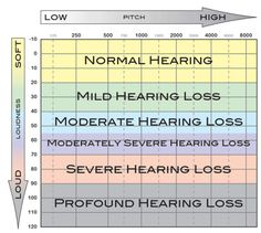 Image from http://alphaonenow.com/userfiles/image/aud_audiogram.gif
