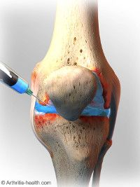Viscosupplementation is a medical treatment for knee osteoarthritis during which lubricating fluid is injected into the knee joint to reduce pain symptoms.