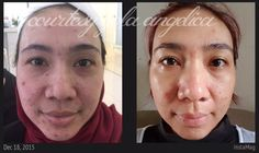 her transformation witin 87 days with ageloc galvanic spa & ageloc R2 in her first couples of month followed by ageloc youthspan on her 3rd months
