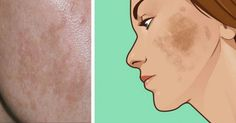 6 φυσικοί τρόποι για να αντιμετωπίσετε τον αποχρωματισμό του δέρματος – Moderndads.gr