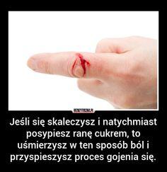 Jeśli się skaleczysz i natychmiast… » Bezuzyteczna.pl- Codzienna dawka wiedzy bezuzytecznej