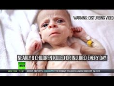 DISTURBING: Children paying highest price in Yemen's brutal armed conflict