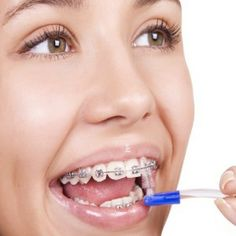 Various Steps Of Taking Off The Braces From Teeth