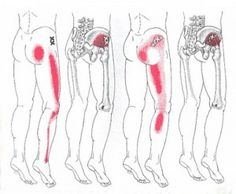 Sciatic Nerve Pain in Leg | Trigger point sciatica referred pain pattern